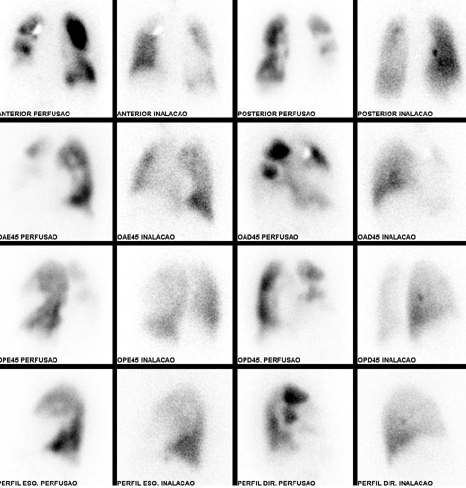 Cintilografia imagem